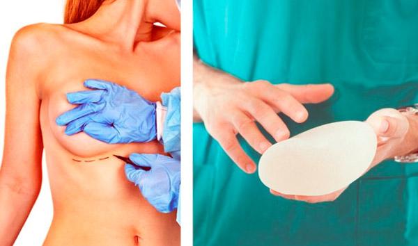 operación de aumento mamario